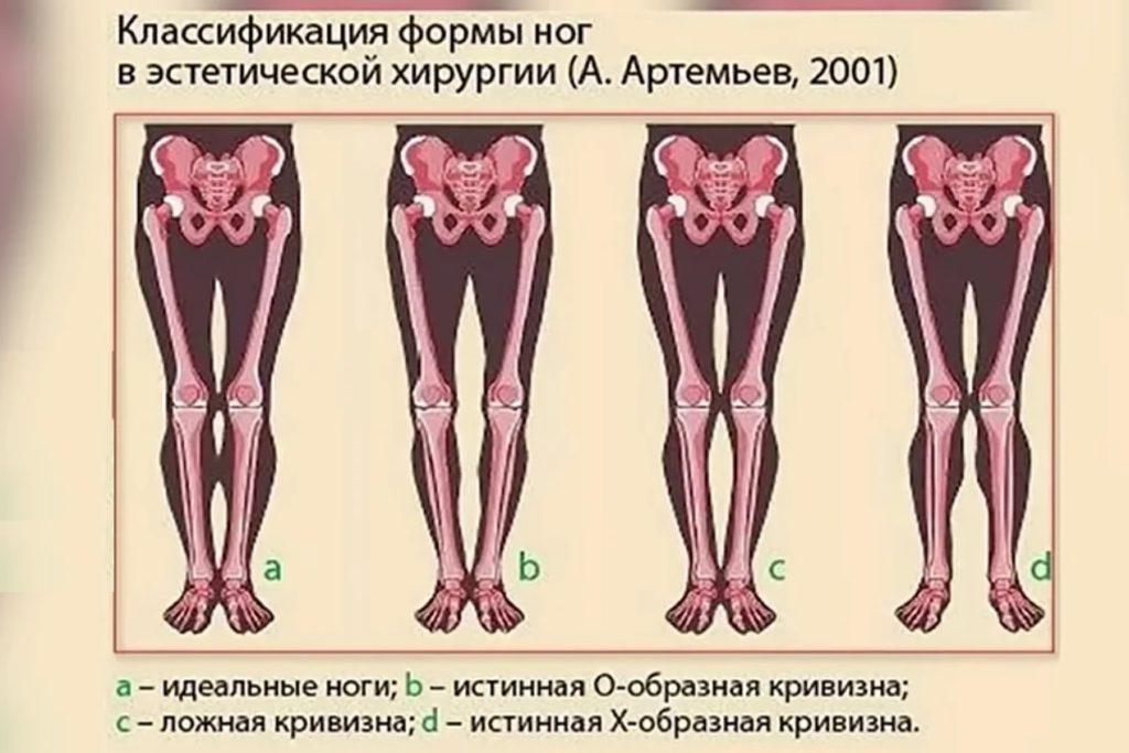 Истинную кривизну дают кости, ложную - мягкие ткани