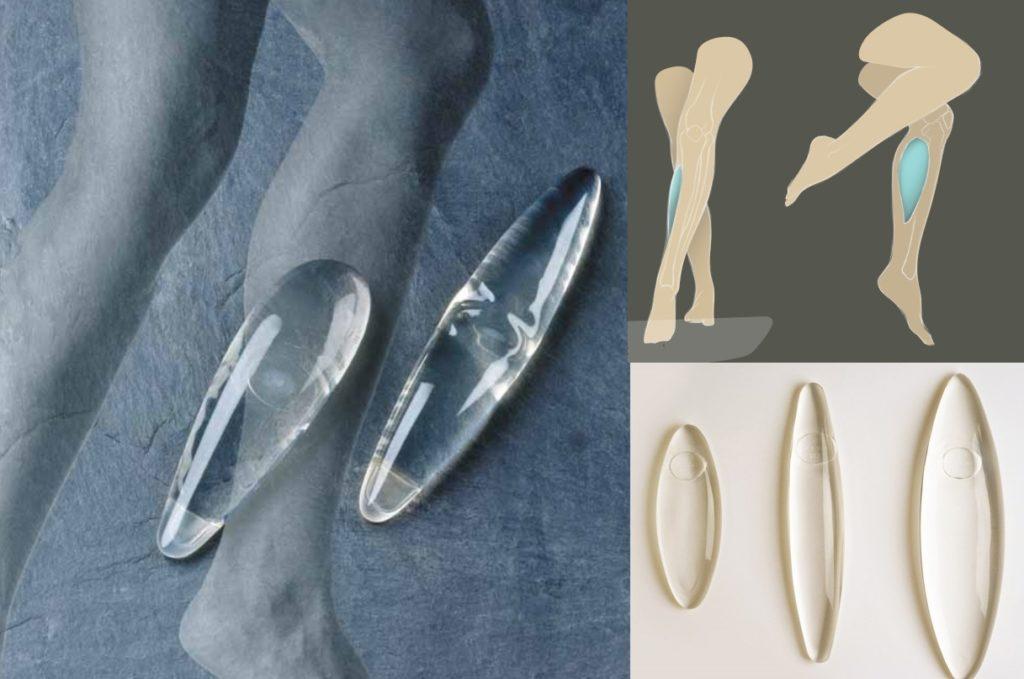 Современные импланты отличаются большим разнообразием