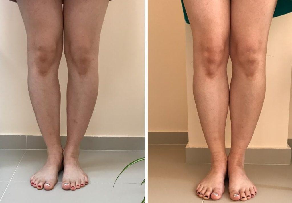 """Имплантанты помогают закрыть """"просветы"""" между ногами"""