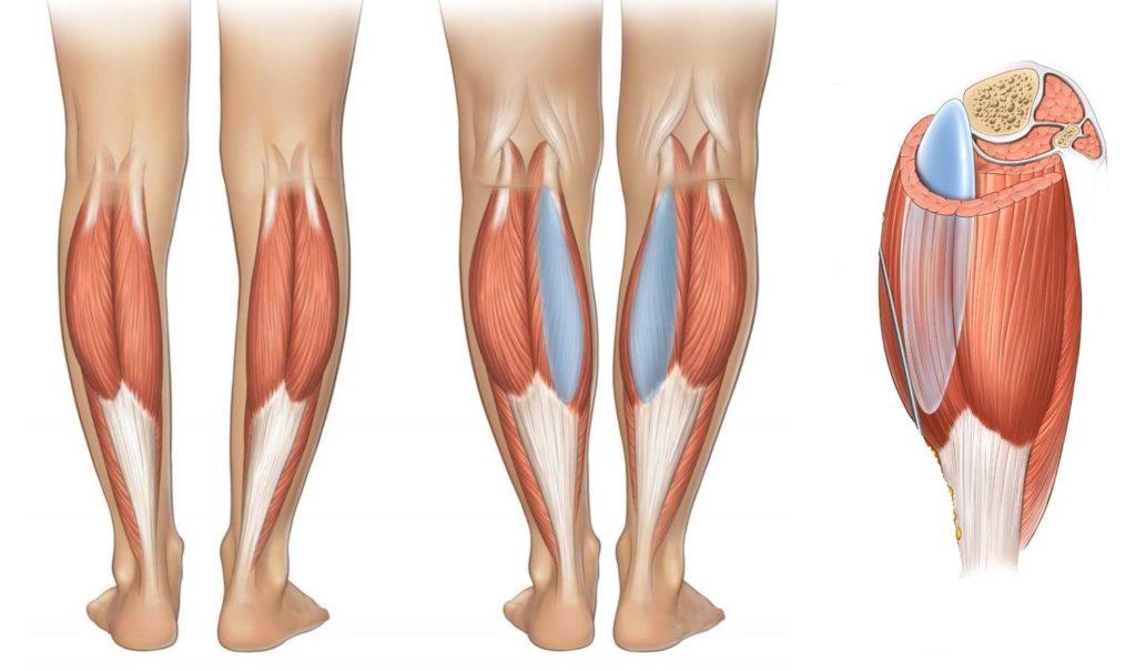 Под фасцией контуры крупного импланта будут легко читаться, мышца скроет их надёжнее