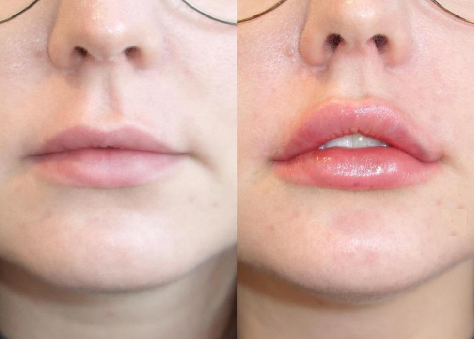 Изменение губ филлерами Stylage Special Lips