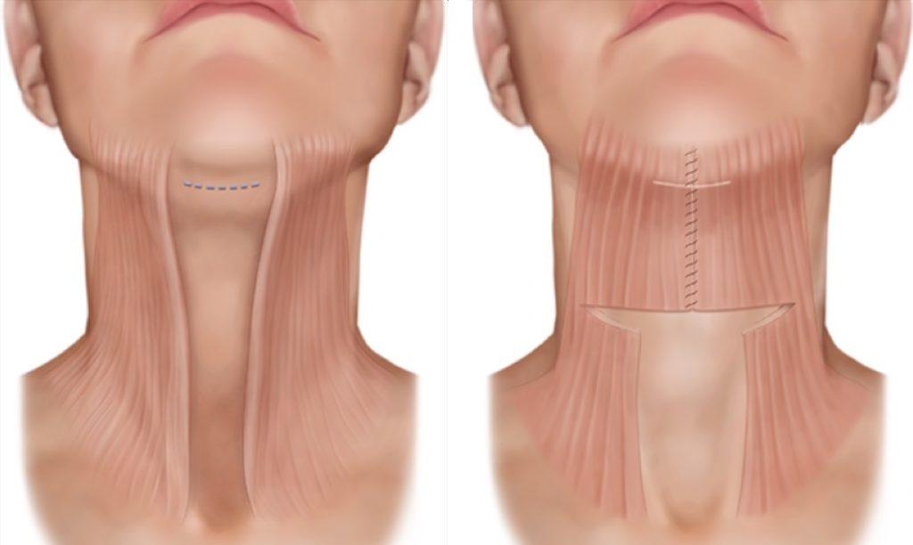 Платизмопластика захватывает глубокие слои мышц
