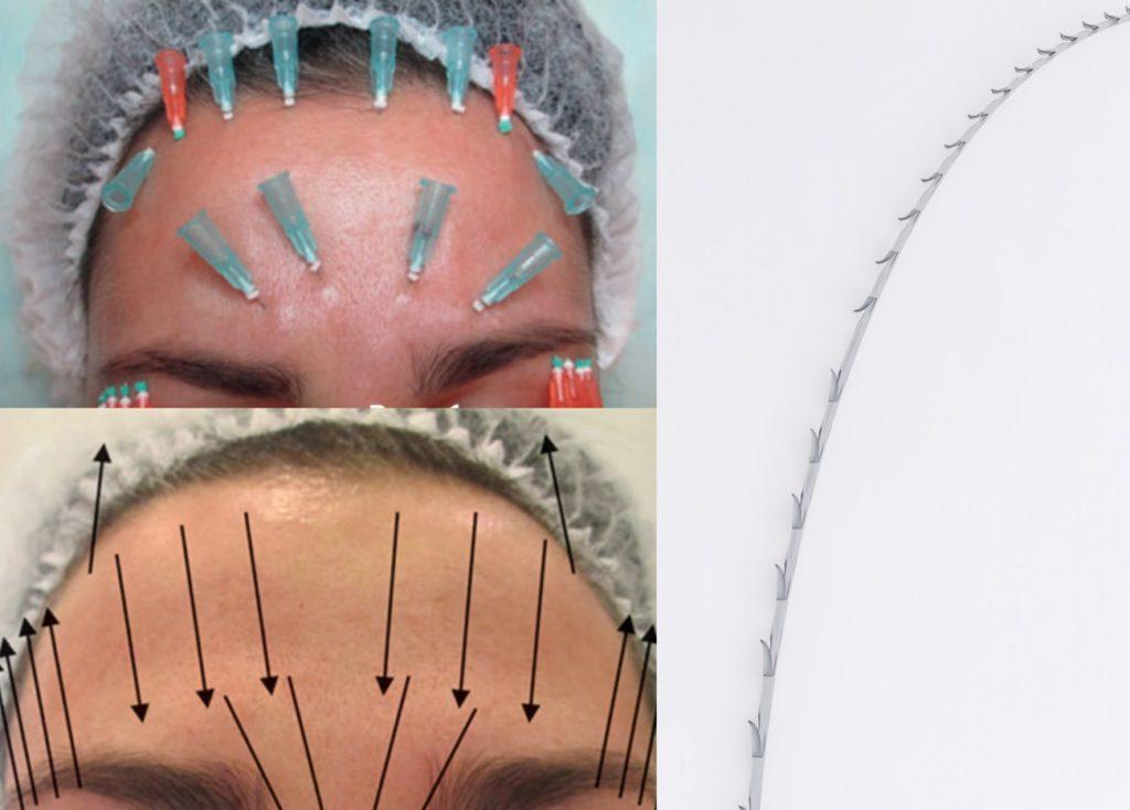 Нити имеют насечки, благодаря которым надёжно закрепляются в коже