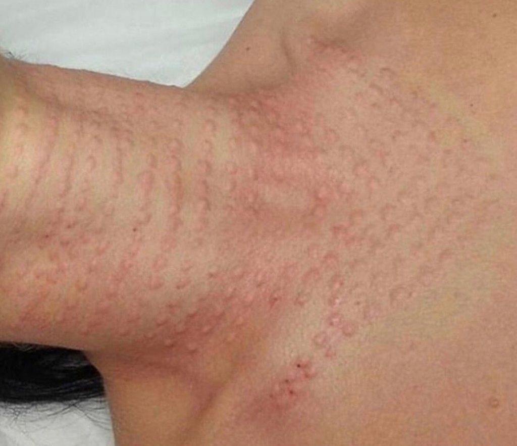 Первое время после введения гиалуроновой кислоты на коже остаются бугорки-папулы