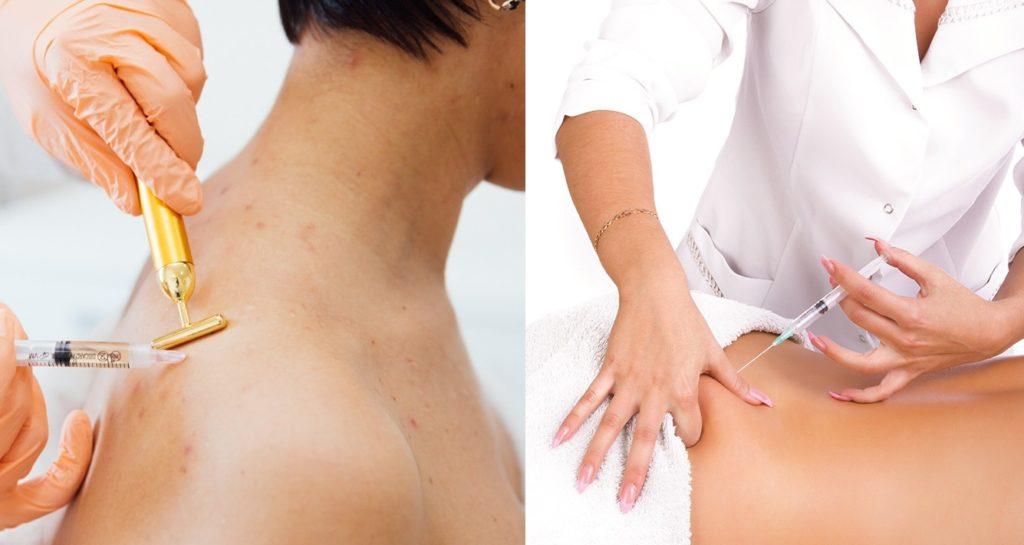 Как правило, спину выбирают, когда требуется улучшить общее состояние организма