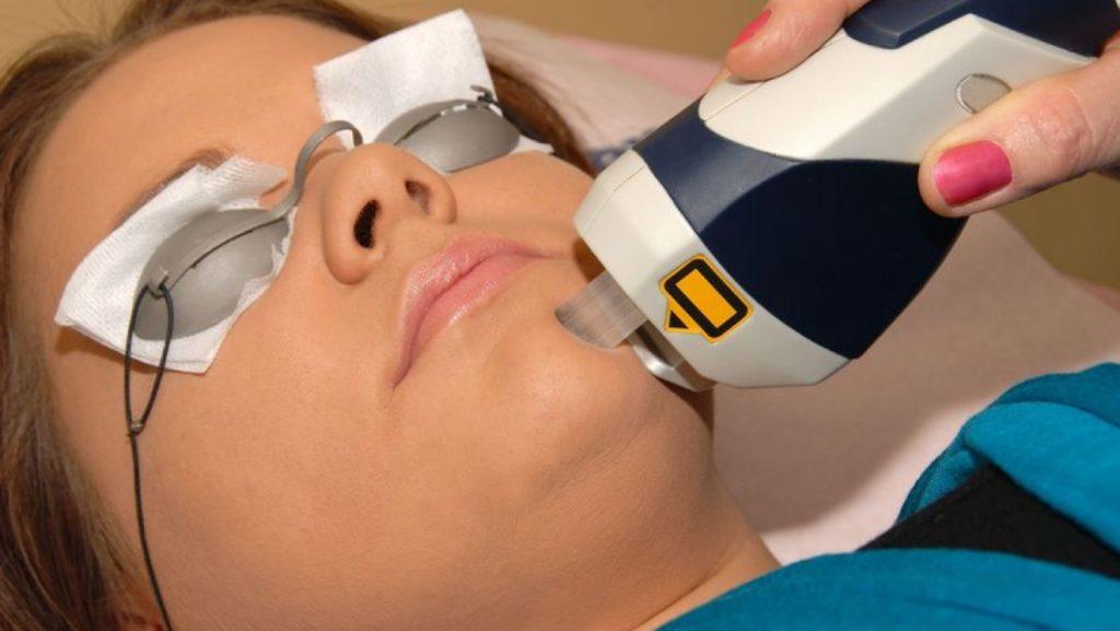 Лазер способен справляться с самыми разными проблемами внешности