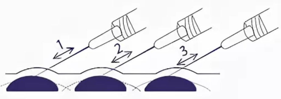 Микропапульная техника