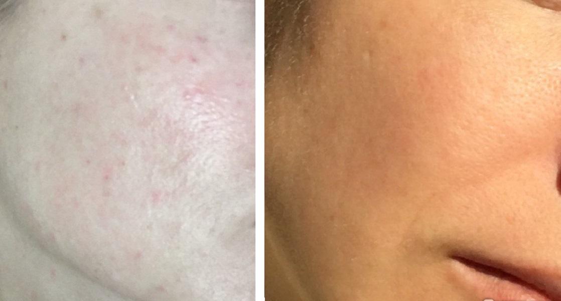 Проблемная кожа становится чище