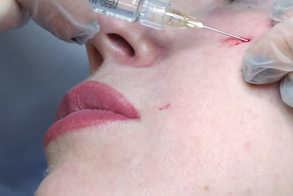 Использование канюлей - редкая и инновационная техника для биорапарации