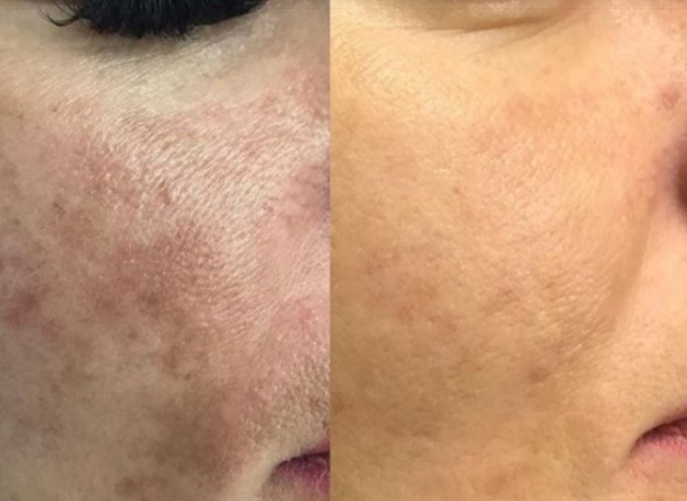 Фото до и после инъекции Мезоксантина №1