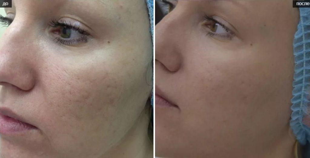Фото до и после инъекции Мезоксантина №2