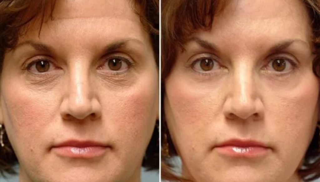 Фото до и после инъекции Мезоксантина № 5