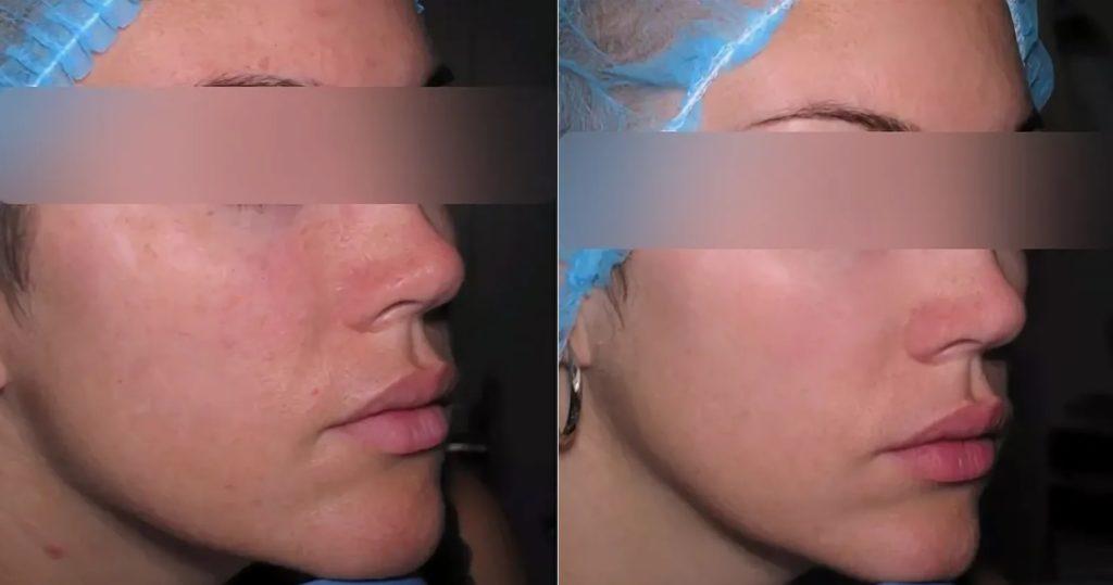 Фото до и после инъекции Мезоксантина № 6