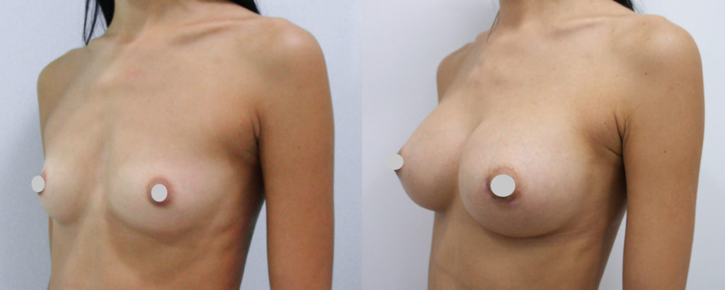 Фото до и после увеличения груди имплантами Motiva №4