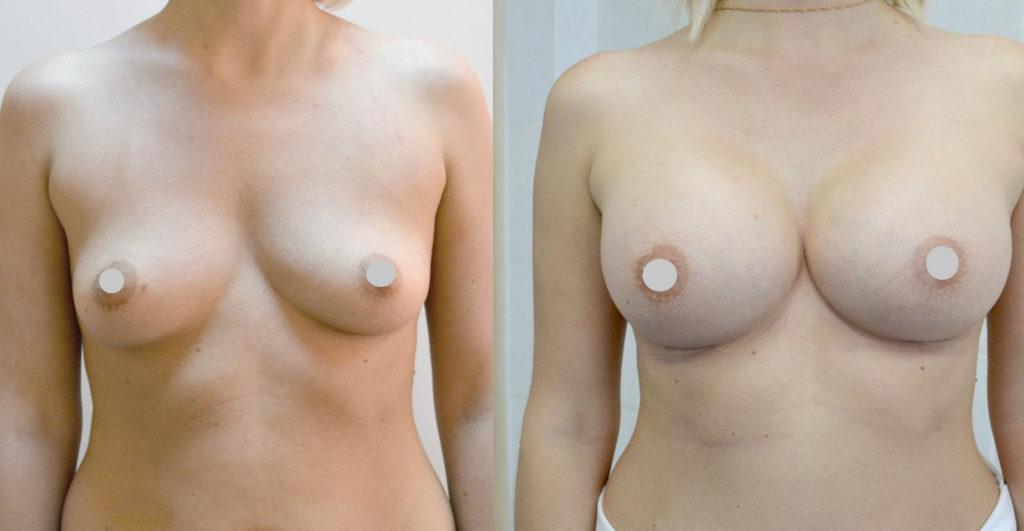 Фото до и после увеличения груди имплантами Motiva №5