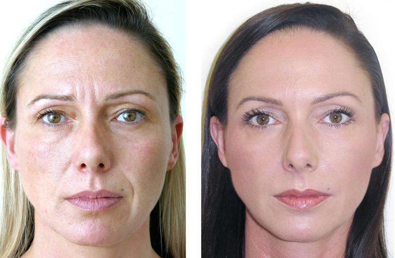 Фото до и после контурной пластики Overage