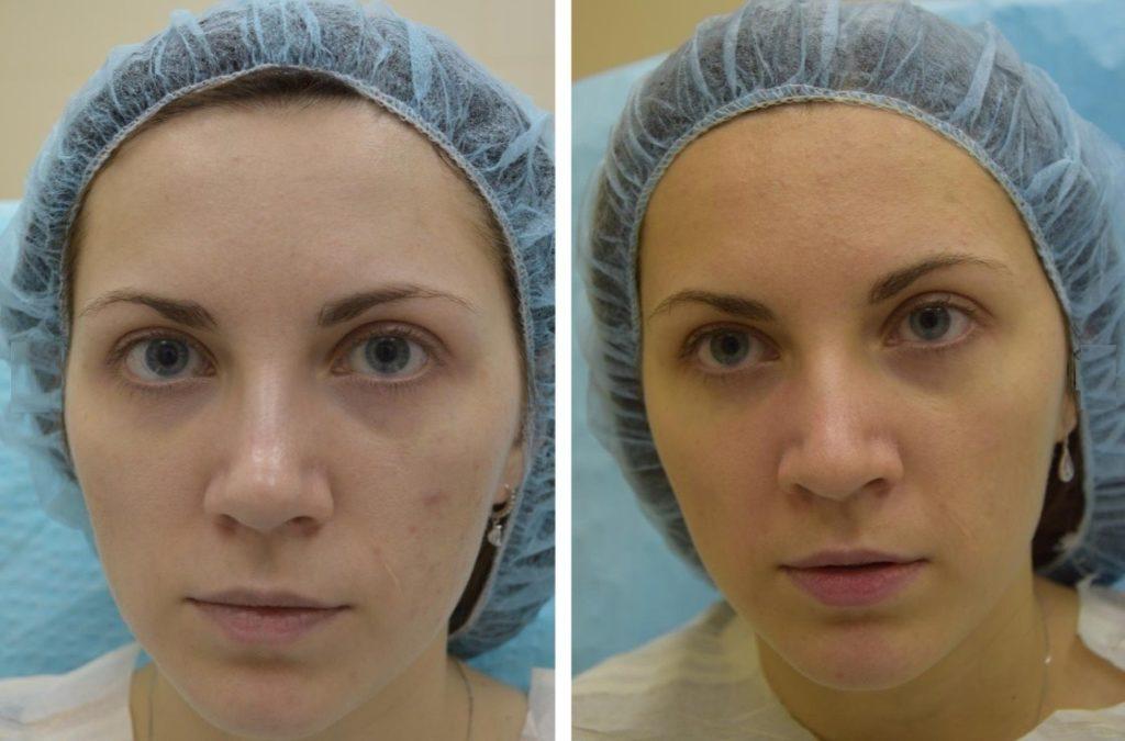 Фото до и после инъекции Мезоксантина № 3