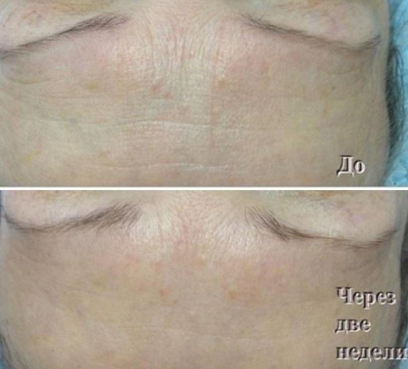 Фото до и после инъекции Мезоксантина № 4