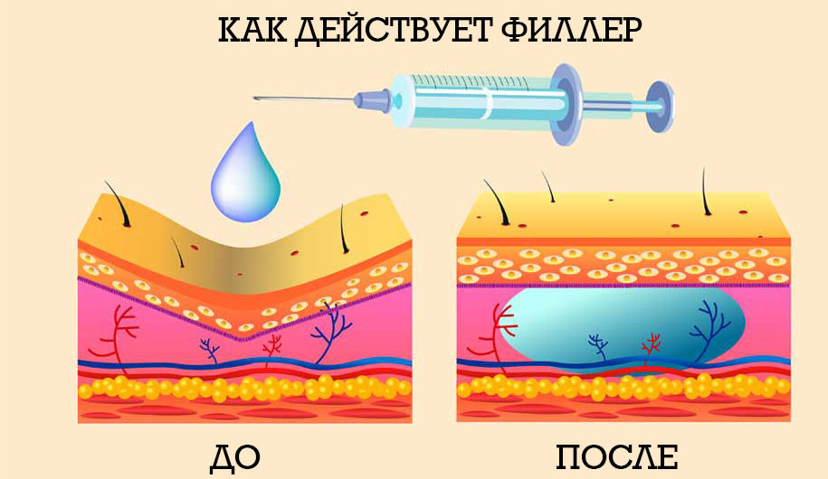 как действует гиалуроновый филлер