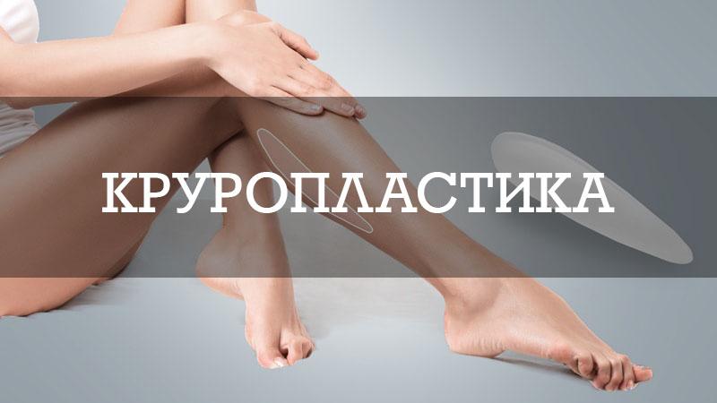 Круропластика - пластика голеней