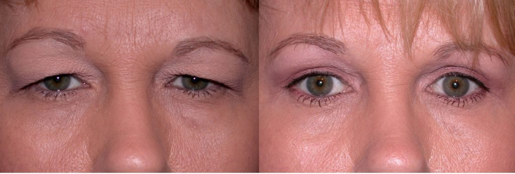 Фото до и после № 2 - верхняя лазерная блефаропластика