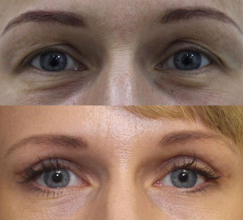 Фото до и после блефаропластики гиалуроновой кислотой № 1