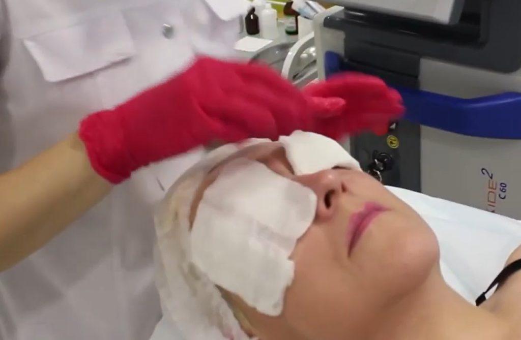 Защита глаз во время аппаратной блефаропластики