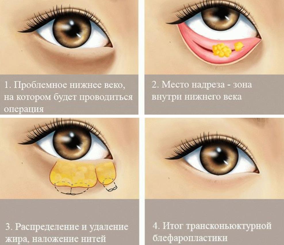 Шов после такой операции останется невидим постороннему глазу