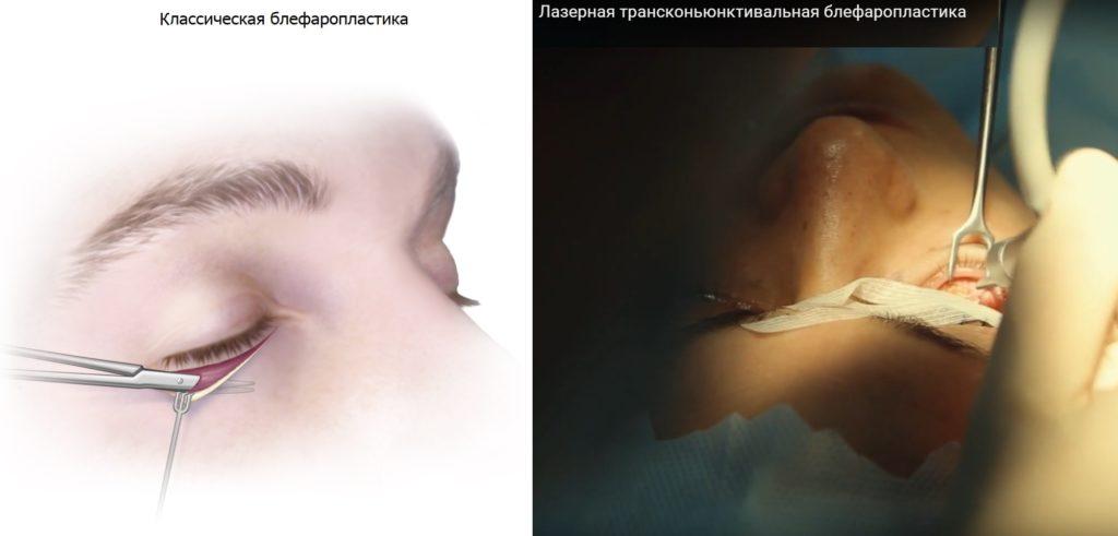 Блефаропластика нижнего века фото № 4