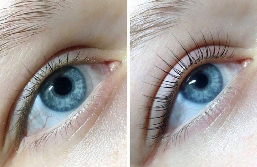 Фото до и после ламинирования с ботоксом № 3