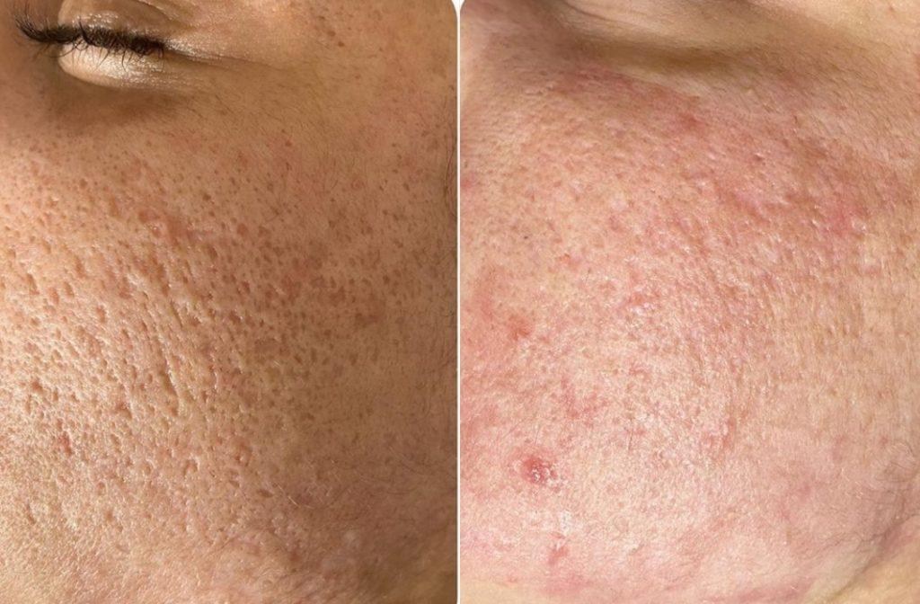 Фото до и после лазерной шлифовки №3