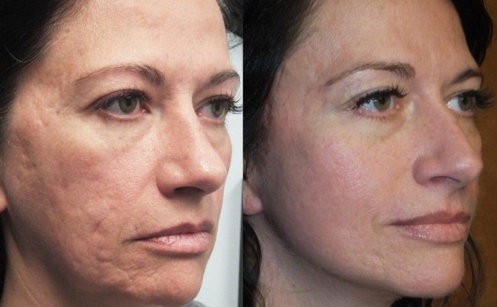 Фото до и после лазерной шлифовки №4