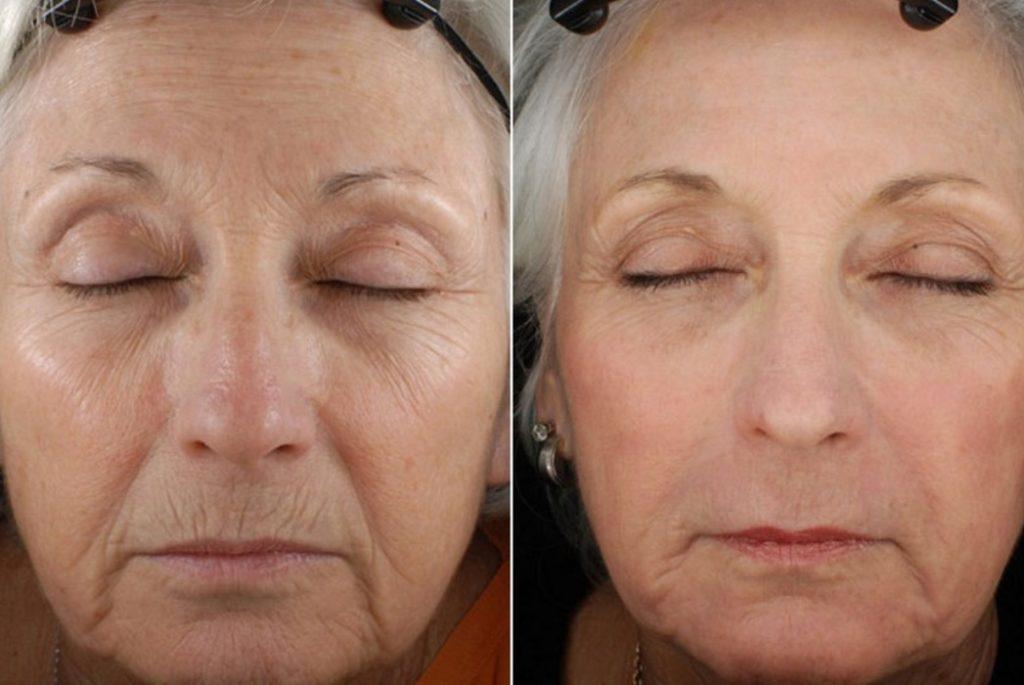 До и после лазерной шлифовки фото №5