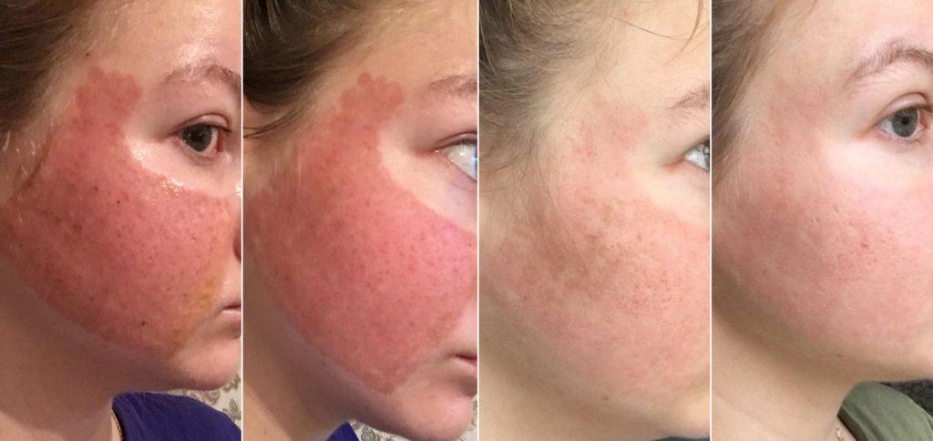 Изменения молодой кожи со 2 по 11 день после шлифовки