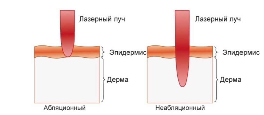 Разница между действием абляционного и неабляционного лазеров