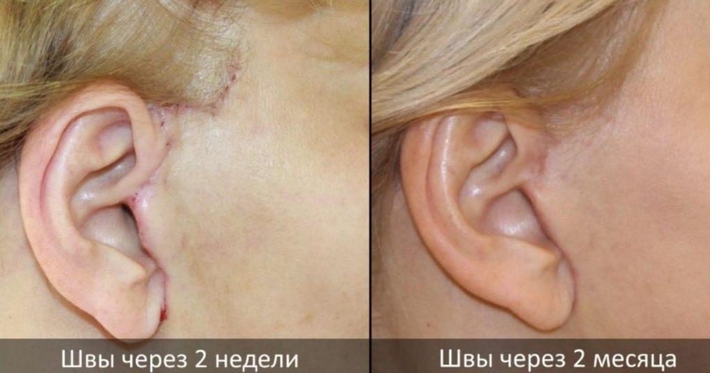 Вид шва через 2 и 4 недели после хирургического вмешательства
