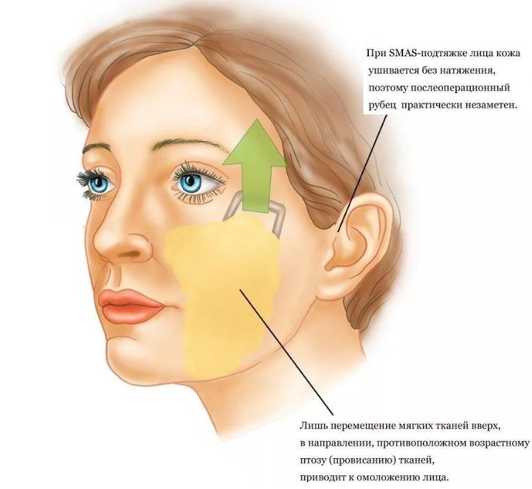 СМАС-лифтинг сложная и травматичная процедура