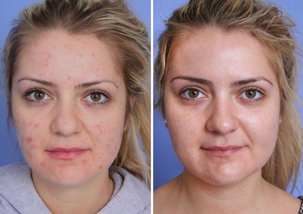 Фото до и после лазерной шлифовки №6