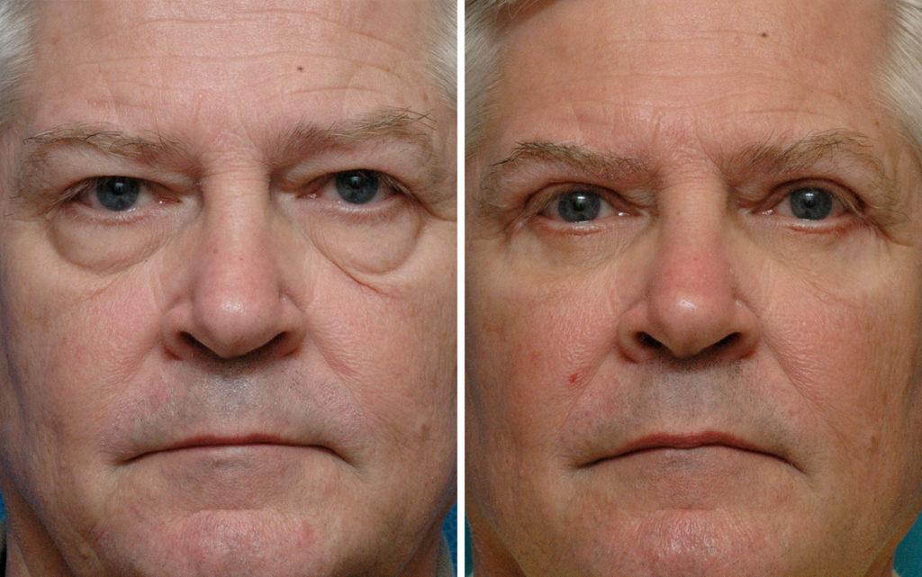 Фото до и после хирургической блефаропластики № 1