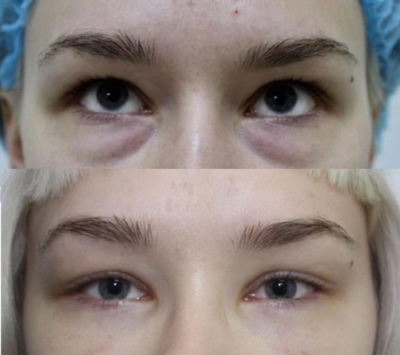 Фото до и после трансконьюктивальной блефаропластики № 2