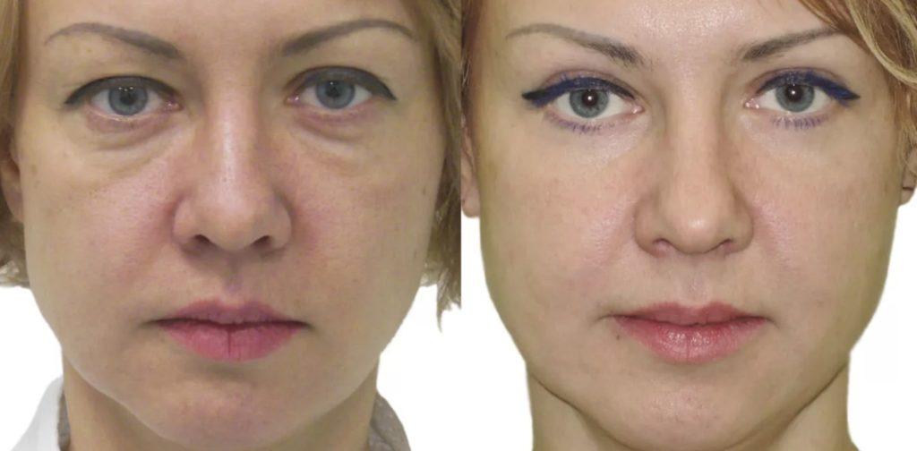 Фото до и после блефаропластики № 3