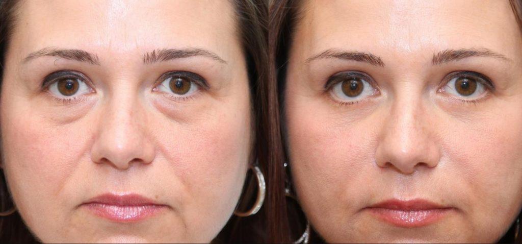 Фото до и после блефаропластики № 4