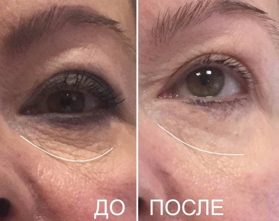 Фото до и после ультразвукового лифтинга № 3