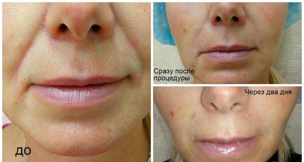 Фото до и после инъекций филлеров Белотеро № 5 (область вокруг рта)