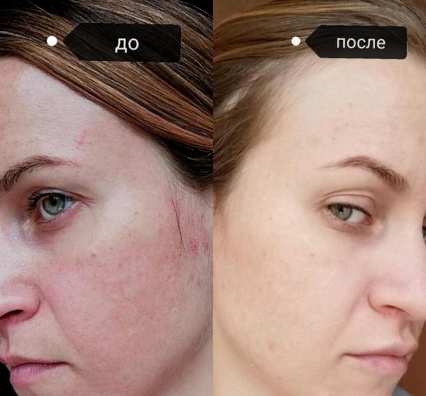 Фото до и после проведения биоревитализации Аквашайном №1