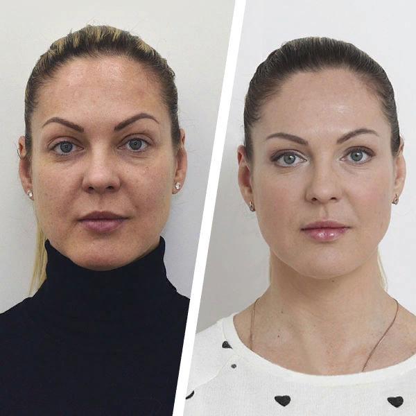 Фото до и после проведения биоревитализации Аквашайном №5