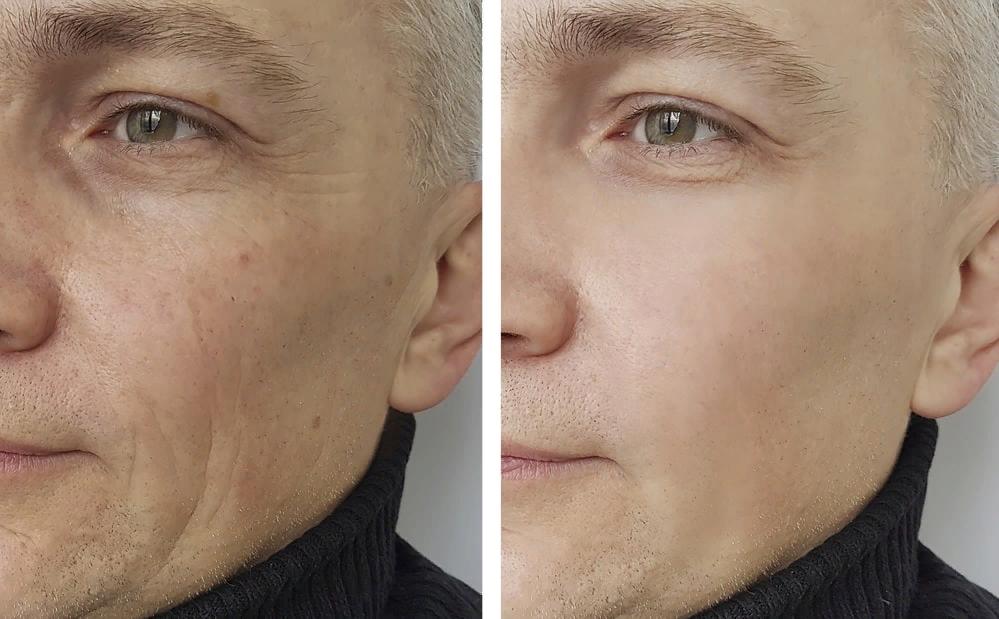 Пример работы Аквашайна на мужском лице