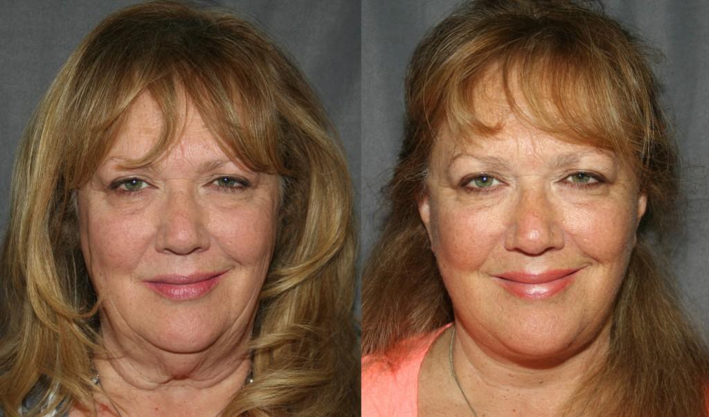 Фото до и после тейпирования лица №1