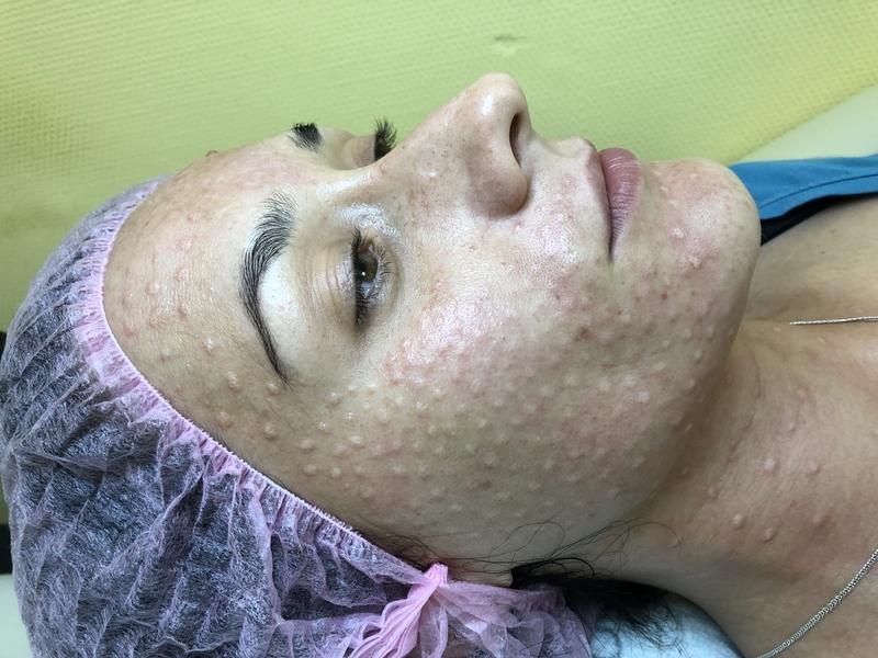 Лицо пациентки сразу после биоревитализации