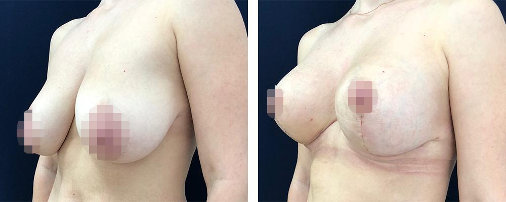 Фото до и после мастопексии №4